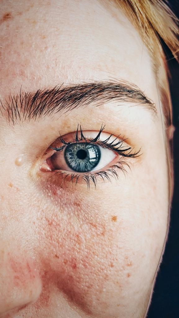 trillend oog