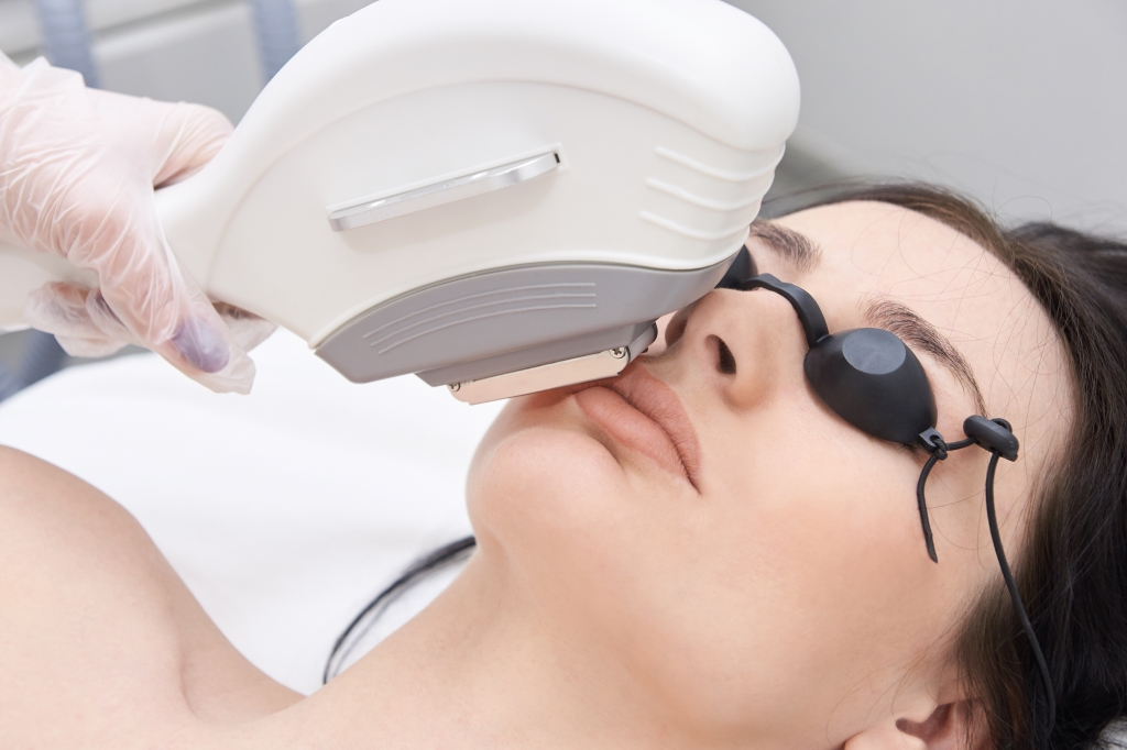 gezichtshaar permanent verwijderen