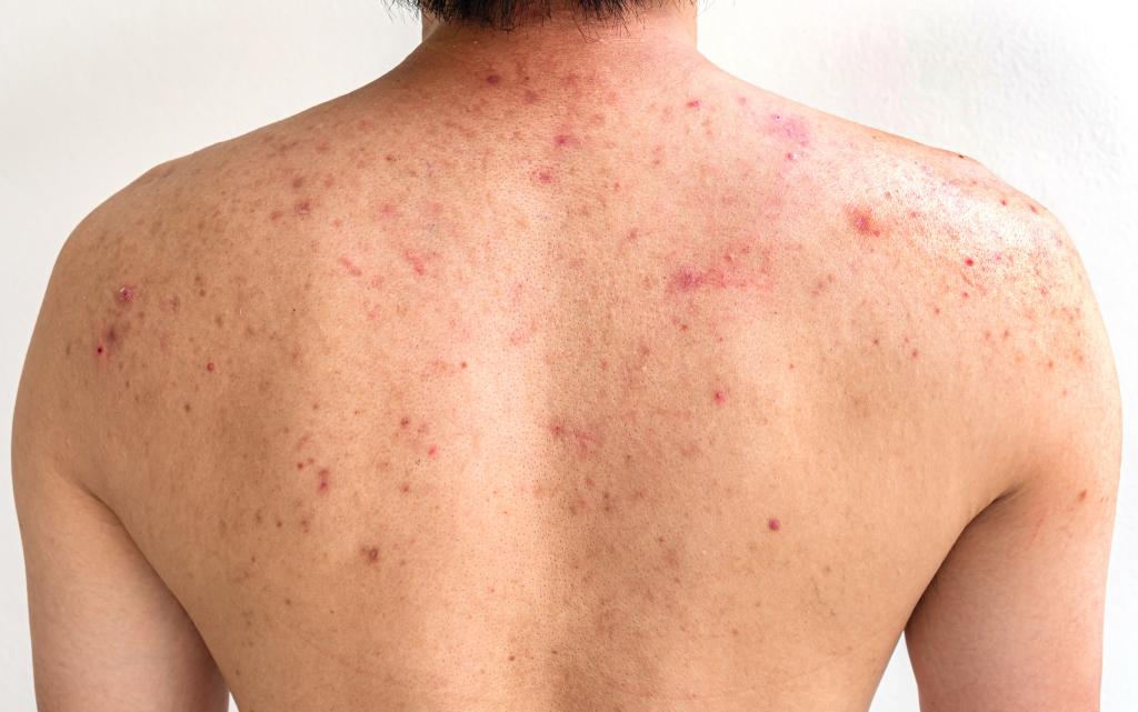 volwassen acne